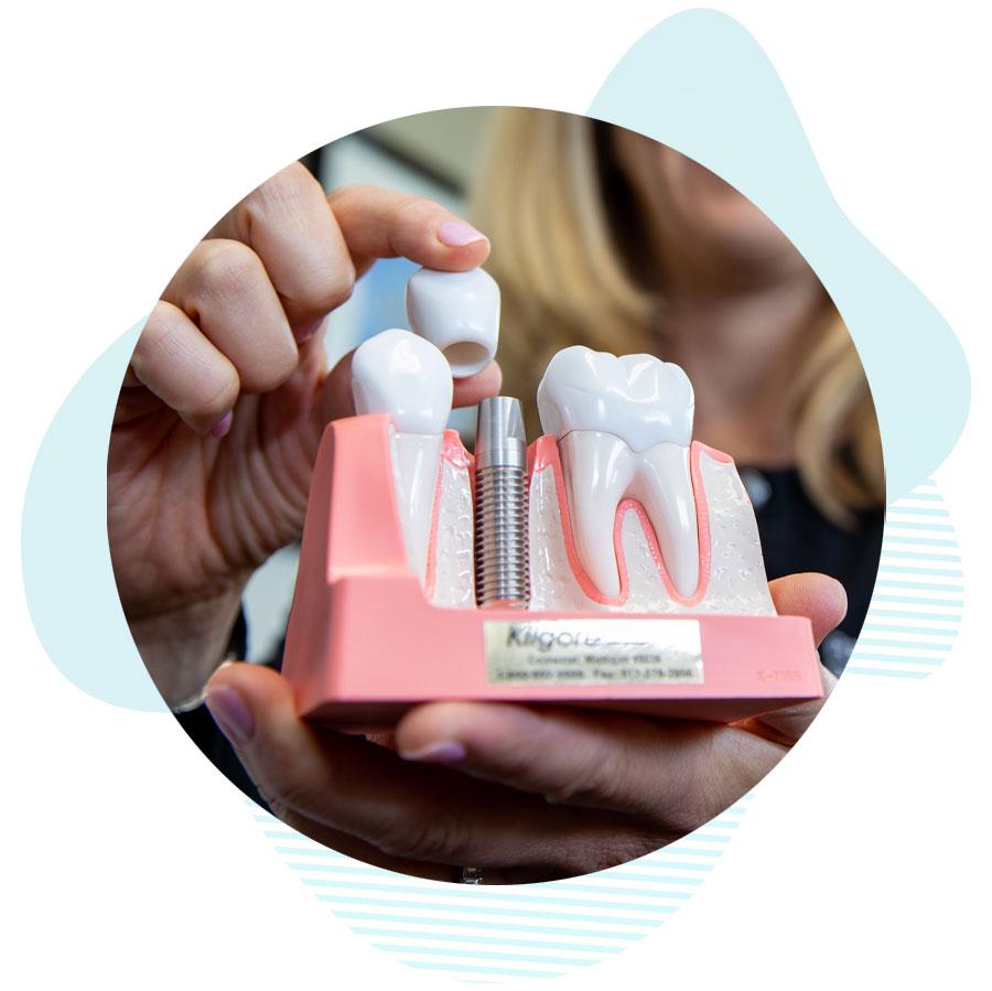dental implants model